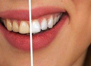 Diş beyazlatma ne kadar?